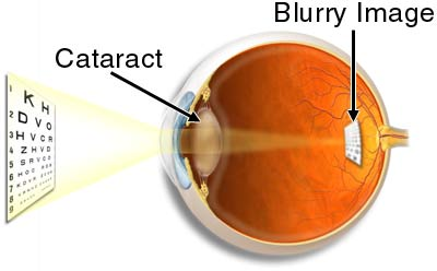 Eye Cataract Vision